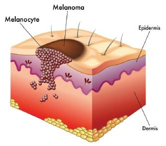 Лечение меланомы Корея