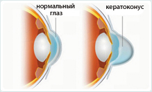 Лечение кератоконуса