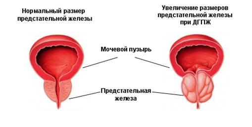 Лечение гиперплазии