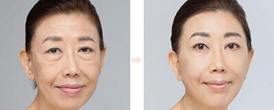 Медюнион пластика лица