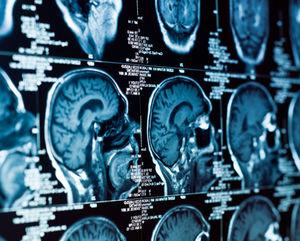 нейрохирургия в Корее