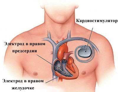 Имплантация кардиостимулятора Корея