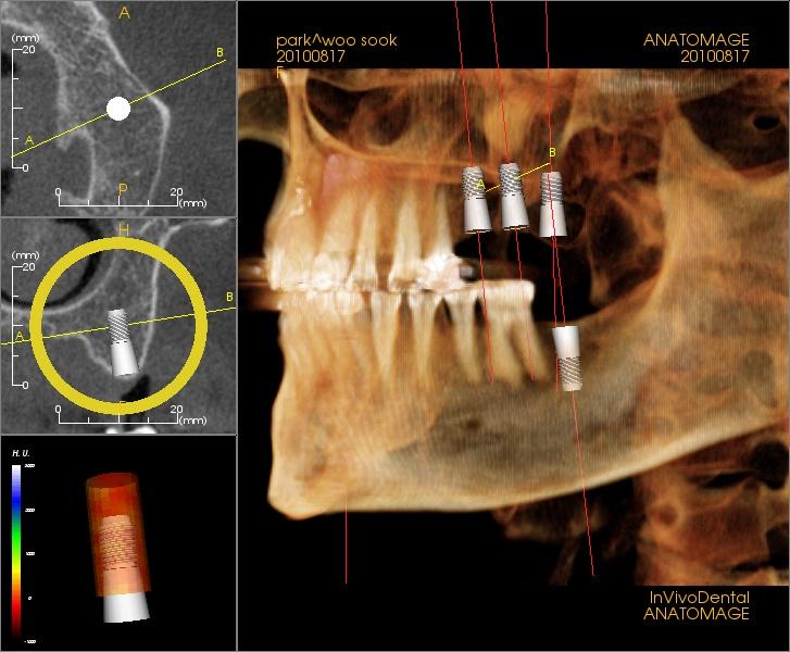 Программа Anatomage Guide