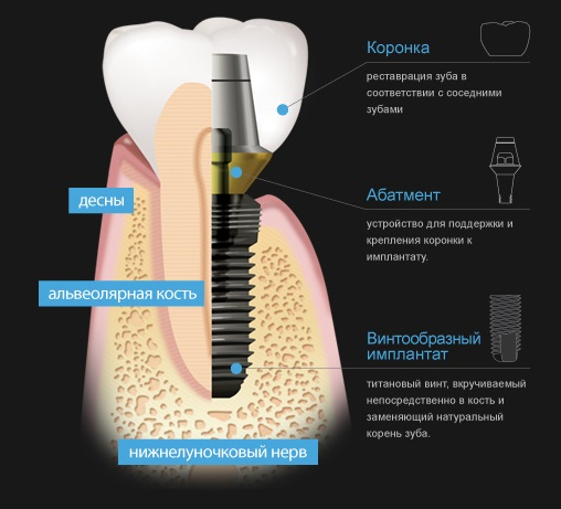 имплантация зуба корея